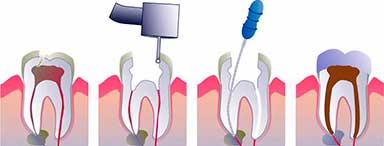 Procedimiento para eliminar la pulpa del diente y sellar el conducto pulpar.
