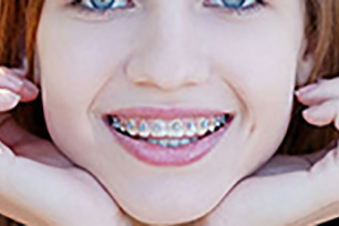 Según sea el caso, el sistema Damon, Alineadent o MBT garantizarán tu nueva sonrisa