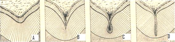 Tipos de surcos y fosas de la superficie oclusal del diente.