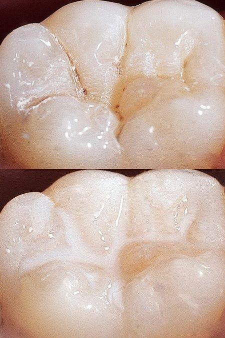 Antes y después del sellado de fosas y fisuras.